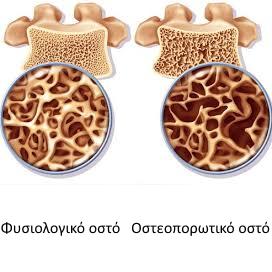 caremedic-osteoporosi-image