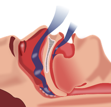 caremedic_Sleep apnea syndrome_1